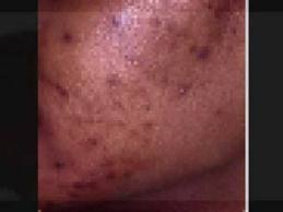 Skin Discoloration in African American Skin